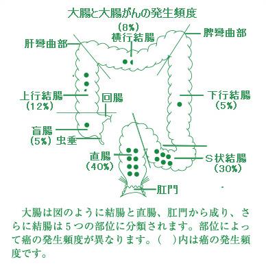 大腸癌の発生頻度