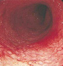 潰瘍性大腸炎(カイヨウセイダイチョウエン)