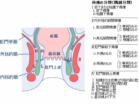 痔瘻の分類