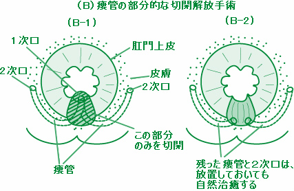 1次口および限局的な瘻管の切開開放手術
