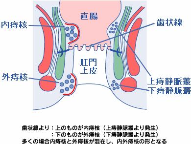 内痔核と外痔核