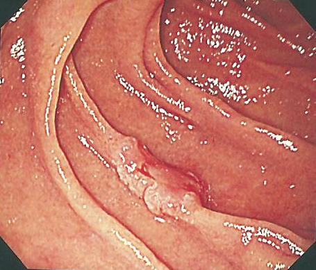十二指腸の早期癌